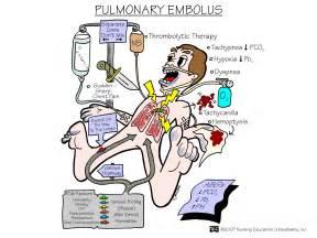 Pulmonary Embolism Cartoon