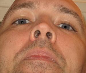 herpes nasale interno thuis behandeling voor gordelroos op de neus