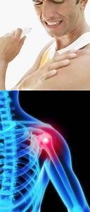 Можно ли вылечить артроз коленного сустава 3 степени народными средствами