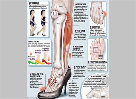 Foot Blister Diagram by 10 Ways To Rock Heels Without Getting Foot Or Blisters