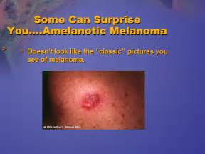 Early Stage Melanoma Skin Cancer