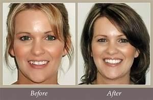 Invisalign® Before & After - Bernardsville Dental Care