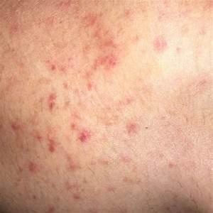 Sekundenkleber Auf Der Haut : rote juckende p nktchen auf der haut gesundheit rote punkte juckende haut ~ A.2002-acura-tl-radio.info Haus und Dekorationen