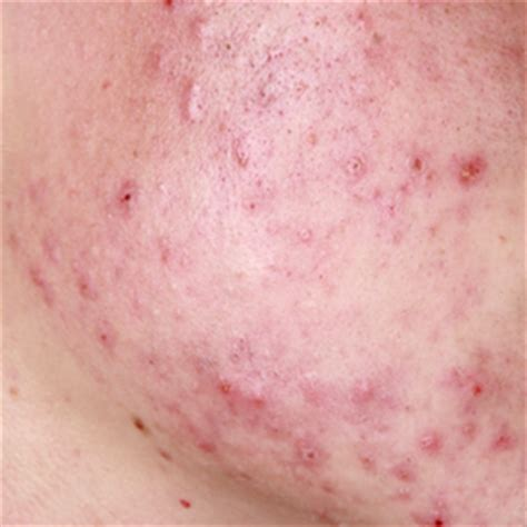 acne door hormonen