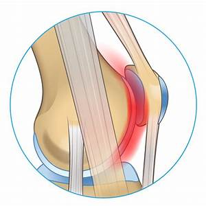 Knee Pain On The Front Of Your Joint  Learn Why