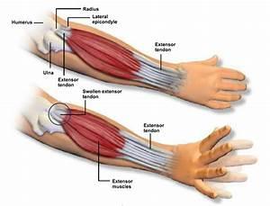 Tennis Elbow  Causes  Symptoms  Treatment Tennis Elbow