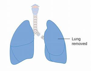 File Diagram Showing The Removal Of A Whole Lung