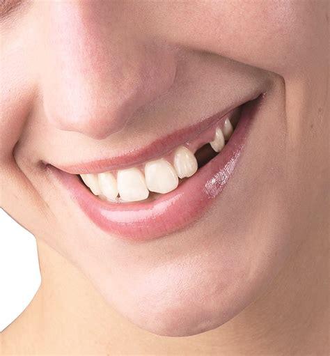 Pin By Lake Jackson Dental Care On Dental Fillings