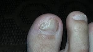 Как победить грибок ногтя на руке
