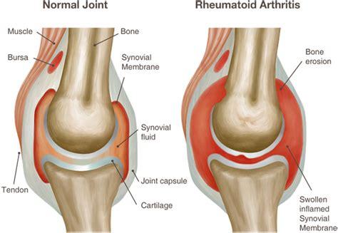 obat rheumatoid arthritis herbal terbaik  efektif  aman