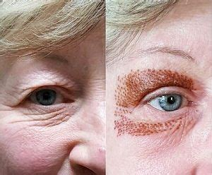 Excellent Before And After Pics Of A Lady Whose Eyelids