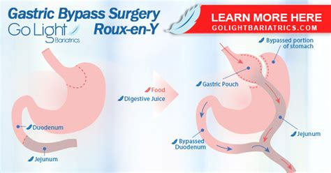Bariatric surgery should be reserved for patients for whom all other methods of treatment have failed. RNY Gastric Bypass Surgery | Gold Standard to Treat Morbid Obesity