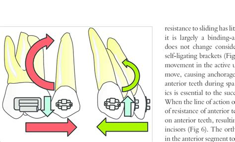 Tooth Movement Diagram by Types Of Tooth Movement A Uncontrolled Tipping B