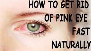 How To Get Rid Of Pink Eye Fast Conjuctivitis Treatment