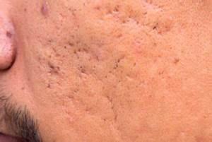 Acne scar holes