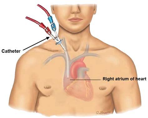 Similiar Hemodialysis Catheter Placement Keywords