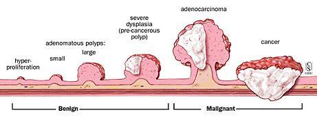 Polipo Anale Interno by Sydney Norwest Gastroenterology Polypectomy