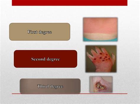 Types of skin burns