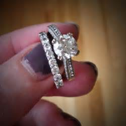 how to get rid of a rash under your wedding rings these With wedding ring dermatitis