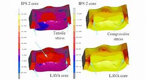 Compressive And Tensile Stresses Which Occurred In Onlay Cores  Blue