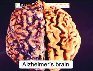 CNS Aging and Alzheimer's Disease (Section 4, Chapter 10 ...