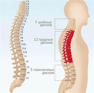 Лечение остеохондроза позвоночника капельницами