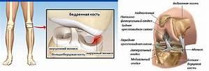 Что такое артроз коленного сустава лечение в домашних условиях
