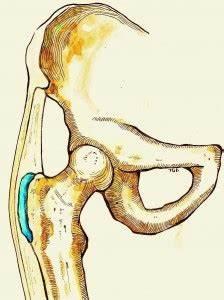 Pijn zijkant bovenbeen