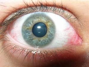 Yeux Verts Rares : iris anatomie ~ Nature-et-papiers.com Idées de Décoration