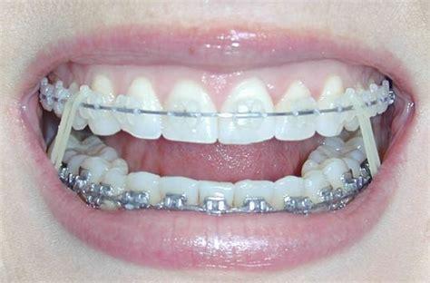 braces worth  penny   finally   teeth