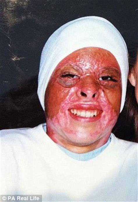 jeairy segarra veras suffers horrific burns  oil
