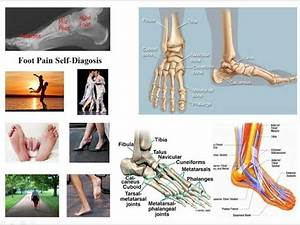 Self Diagnosis Of Foot And Disorders Youtube