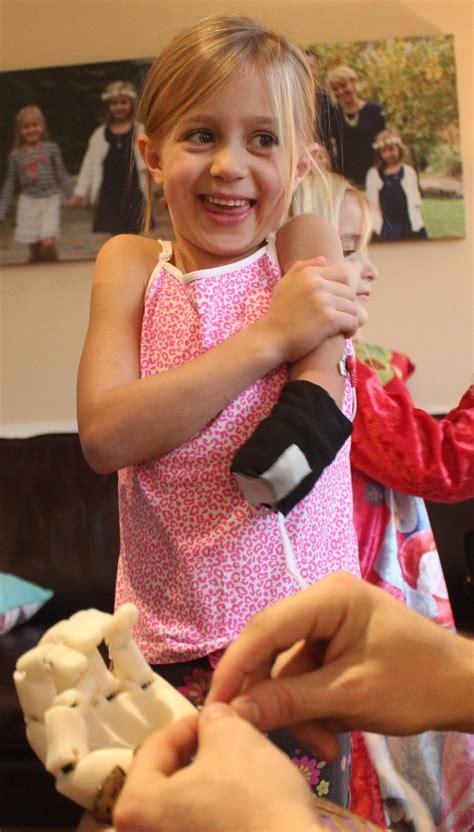 holiday miracle  printed myoelectric arm  girl