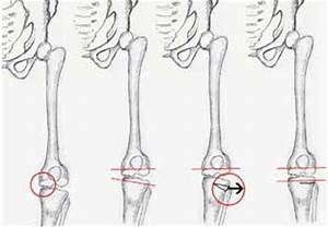 Which articular cartilage repair procedure?   KNEEguru