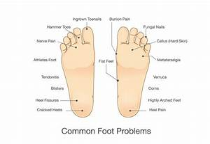 Services-basic-foot-care-diagram