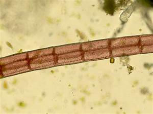 Microscopic Life - Reefkeeping.com
