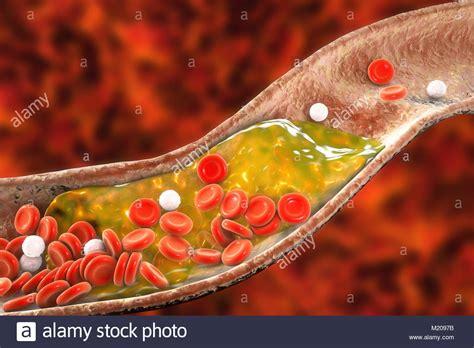 vaso sanguigno placche ateromatose all interno vaso sanguigno