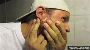 CYST Explosion - Giant PIMPLE Popping on Make a GIF
