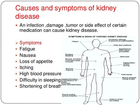Kidney Failure Signs Symptoms Causes Stages  Autos Post. Towson University Website Open Source Courses. Liability Insurance State Farm. Riverside Rehabilitation Center. Jackson National Life Insurance Company. Compare Travel Insurance Quotes. Free Email Templates For Outlook. Wireless Internet From At&t Honda Pilot Wiki. Water And Fire Restoration Top Dentists In Nj