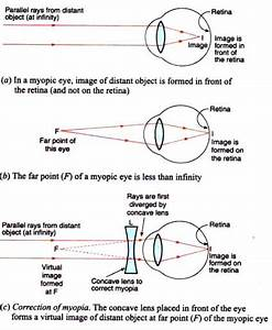 Explain With The Help Of Labelled Ray Diagram  The Defect