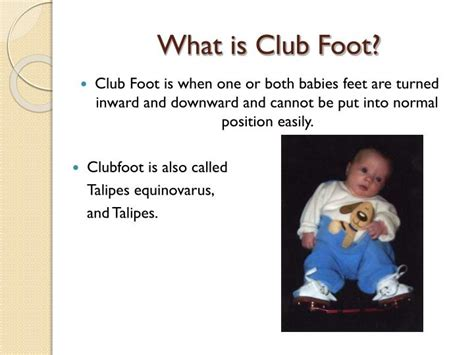 The causes of clubfoot in babies are not exactly clear. PPT - Club Foot PowerPoint Presentation - ID:2103716