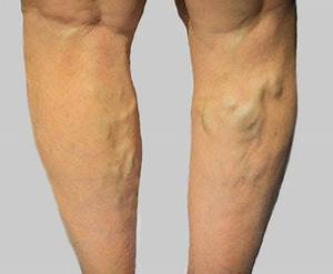 Varicose Veins | Vein Clinic at Novus Spine & Pain Center ...