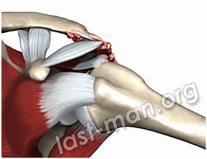Артроз плечевого сустава лечение таблетки отзывы