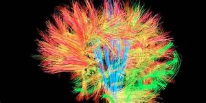 Scientists Publish Brain Map With Nearly 100 Previously Unknown Regions