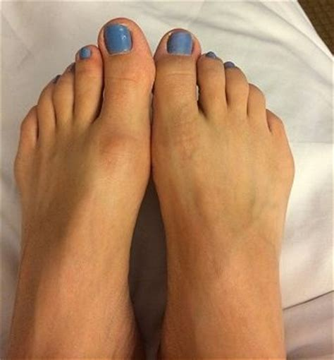 hallux limitus   condition resulting  stiffness   big toe joint   caused