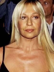 Donatella Versace Before Plastic Surgery | SurgeryStars