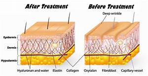Why Glycolic Acid   U2013 Clinage Skin Rejuvenation System