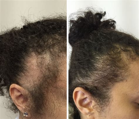 Coloring Relaxed Hair by Hair Straightener Damage Repaired International Hair