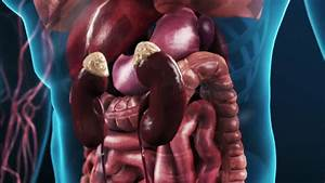 Zoom In On Human Kidney Showing Diseased Glomeruli And