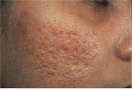 Tuberous Acne Cured with Homeopathy - The Homeopathic College  Severe Cystic Acne Scars